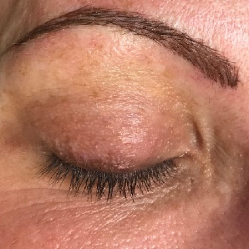 Before and After Photos of Microblading Brows