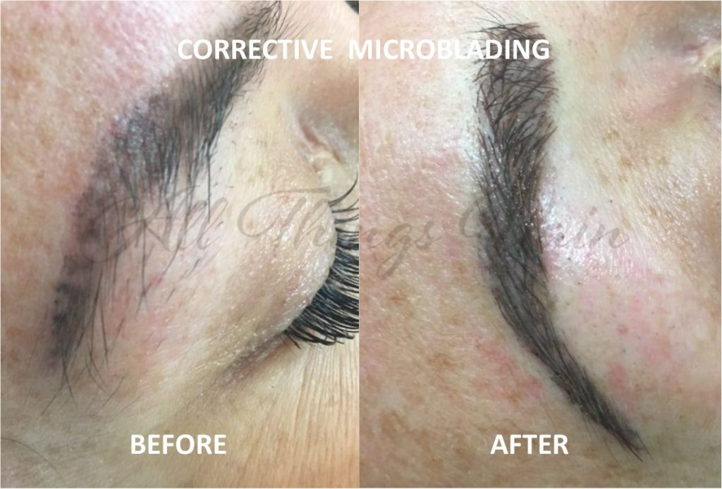 Corrective Microblading - Before and After