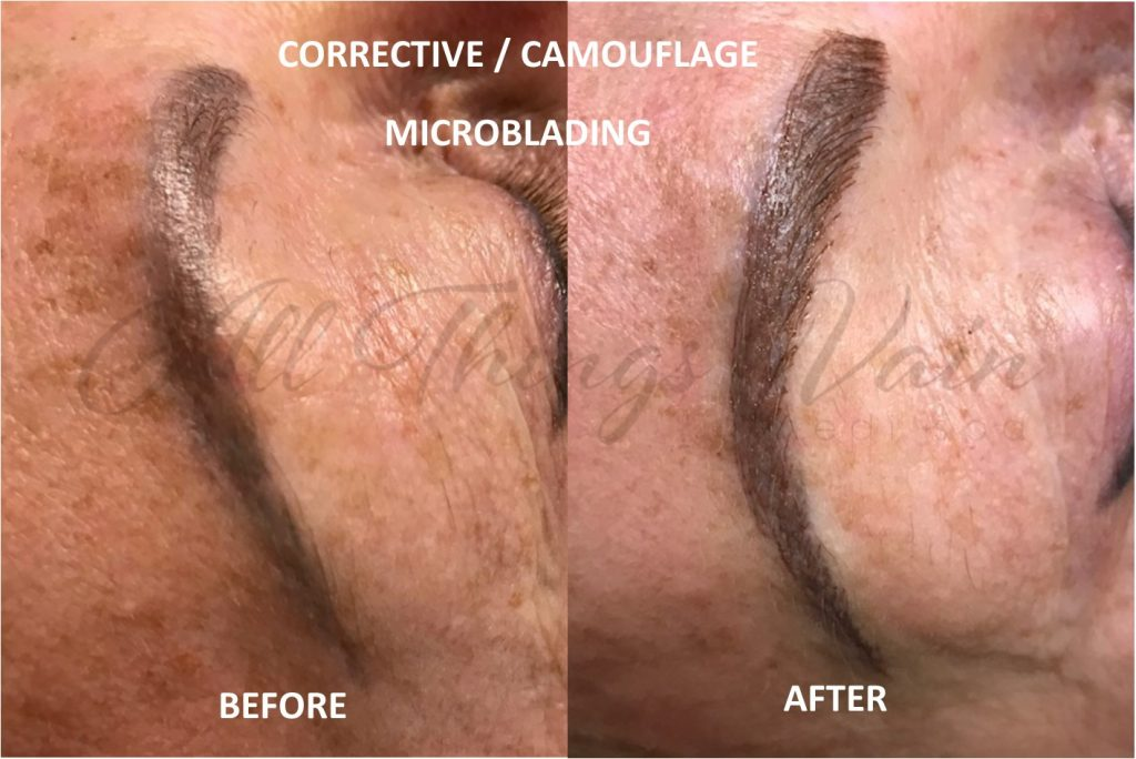 Corrective Micropigmentation Before and After