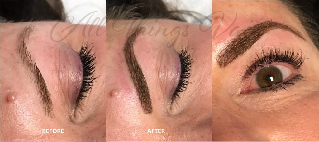 Permanent Makeup Lone Tree CO - All Things Vain Medi Spa