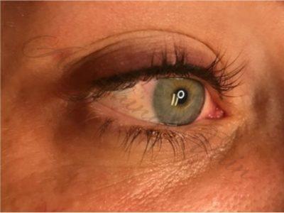Permanent Eyeliner Denver