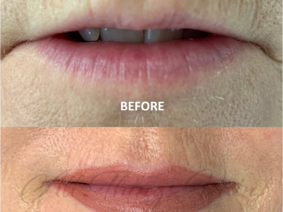 Before and After Lips June 2021