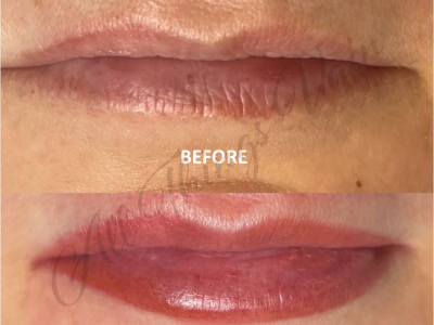 Before and After Lips2 June 2021