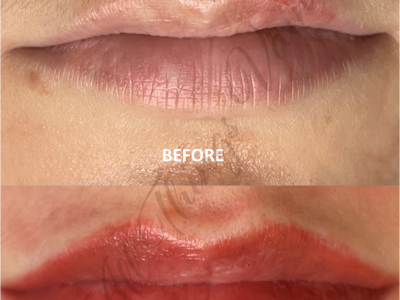 Before and After Lips3 June 2021