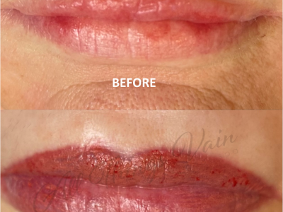 Before and After Lips4 June 2021